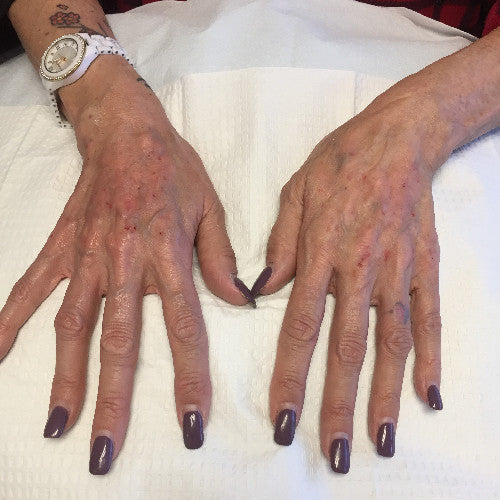 Aging hands Before