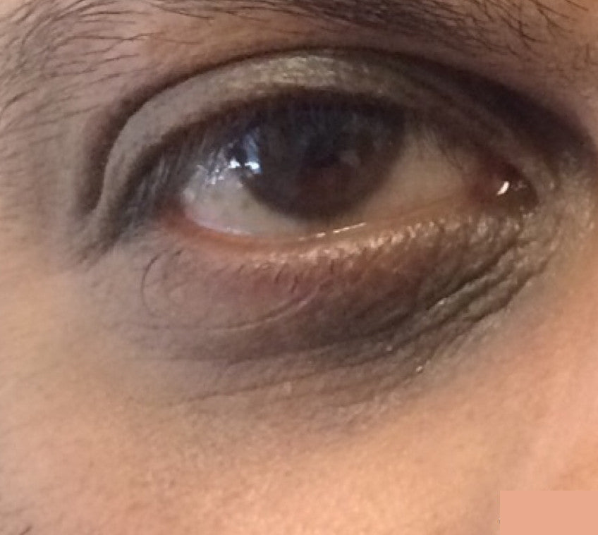 Enriched Retinol Eye Cream After