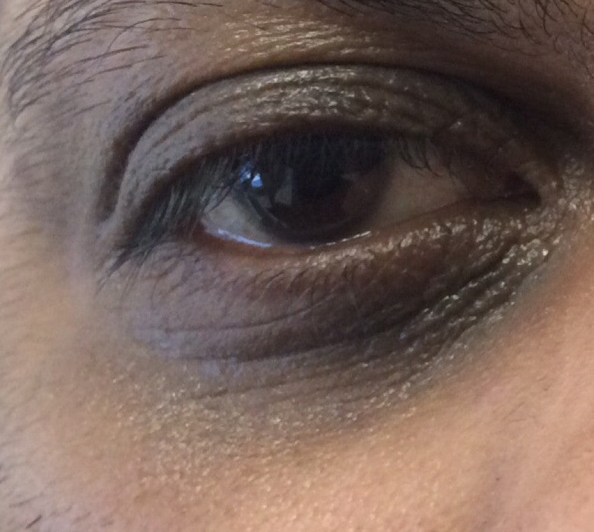 Enriched Retinol Eye Cream Before