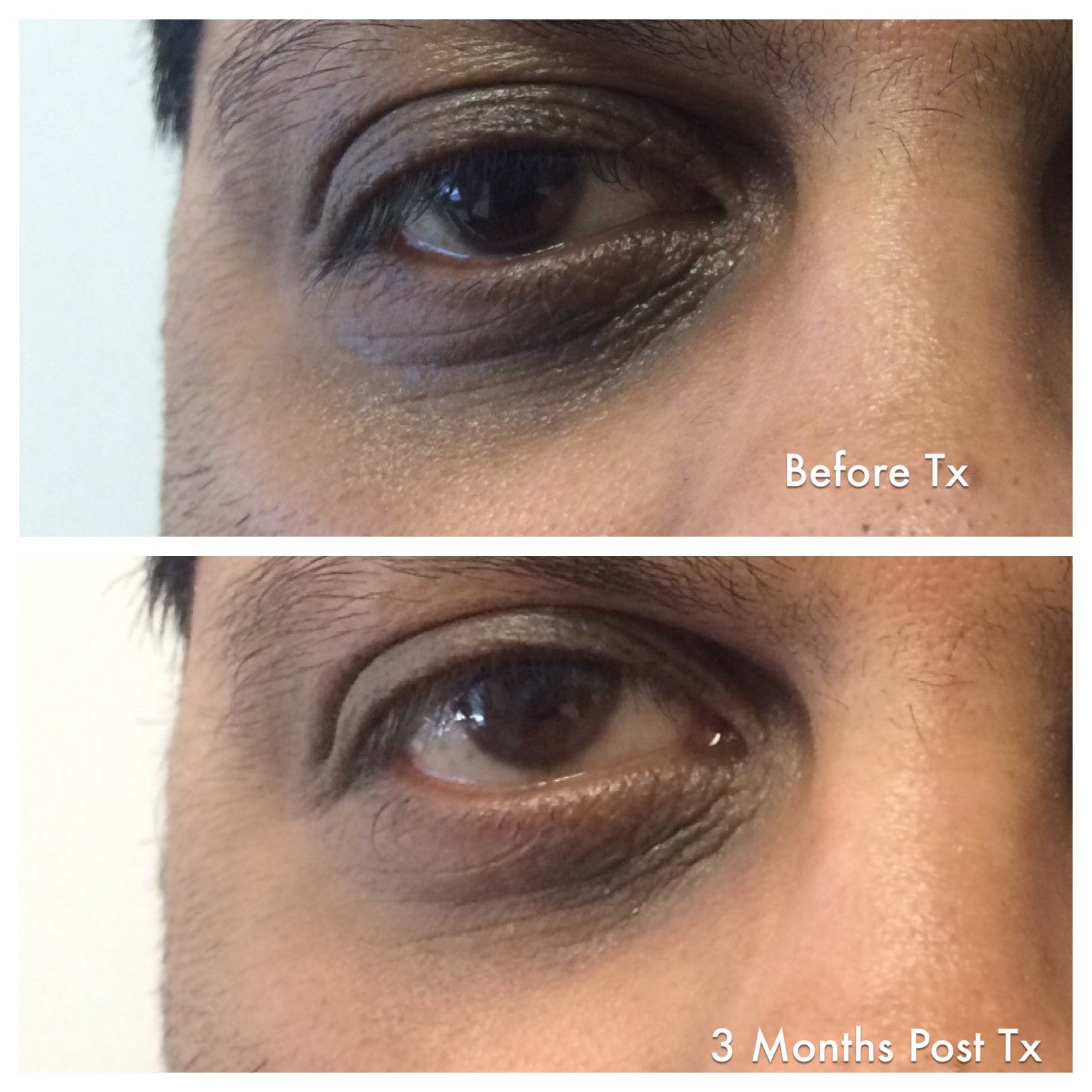 Enriched Retinol Eye Cream Before and After