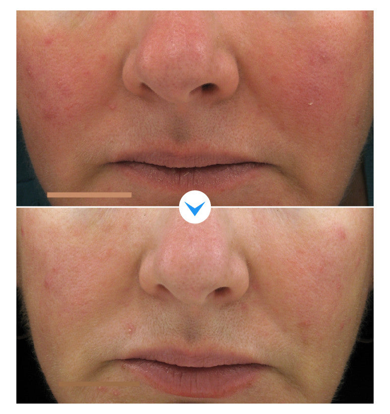 Power of Three Serum Before and After