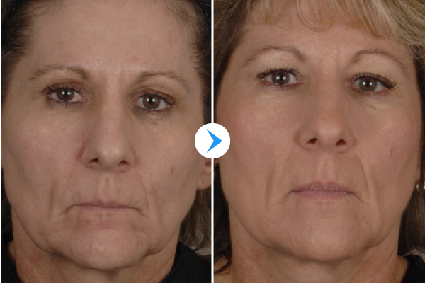 Profractional Before and After