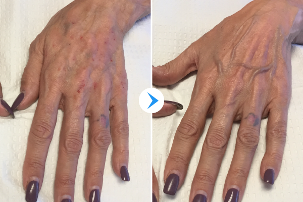 Aging hands Before and After
