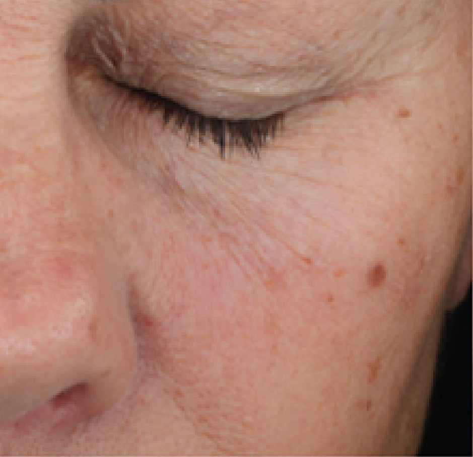 Retinol Plus Smoothing Serum Before