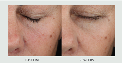 Retinol Plus Smoothing Serum Before and After