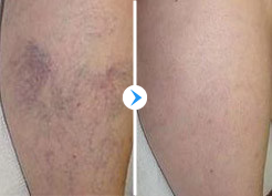 Spider Veins Treatment Before and After