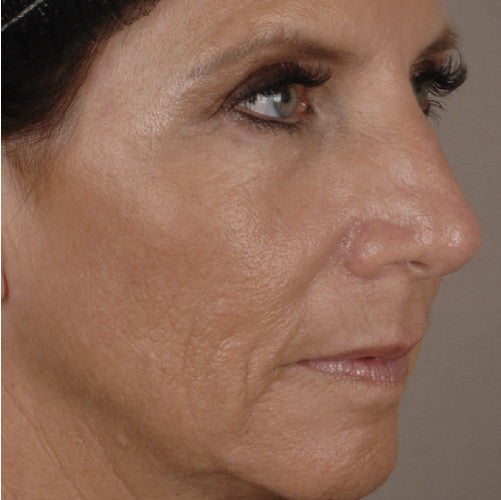 Ultherapy After