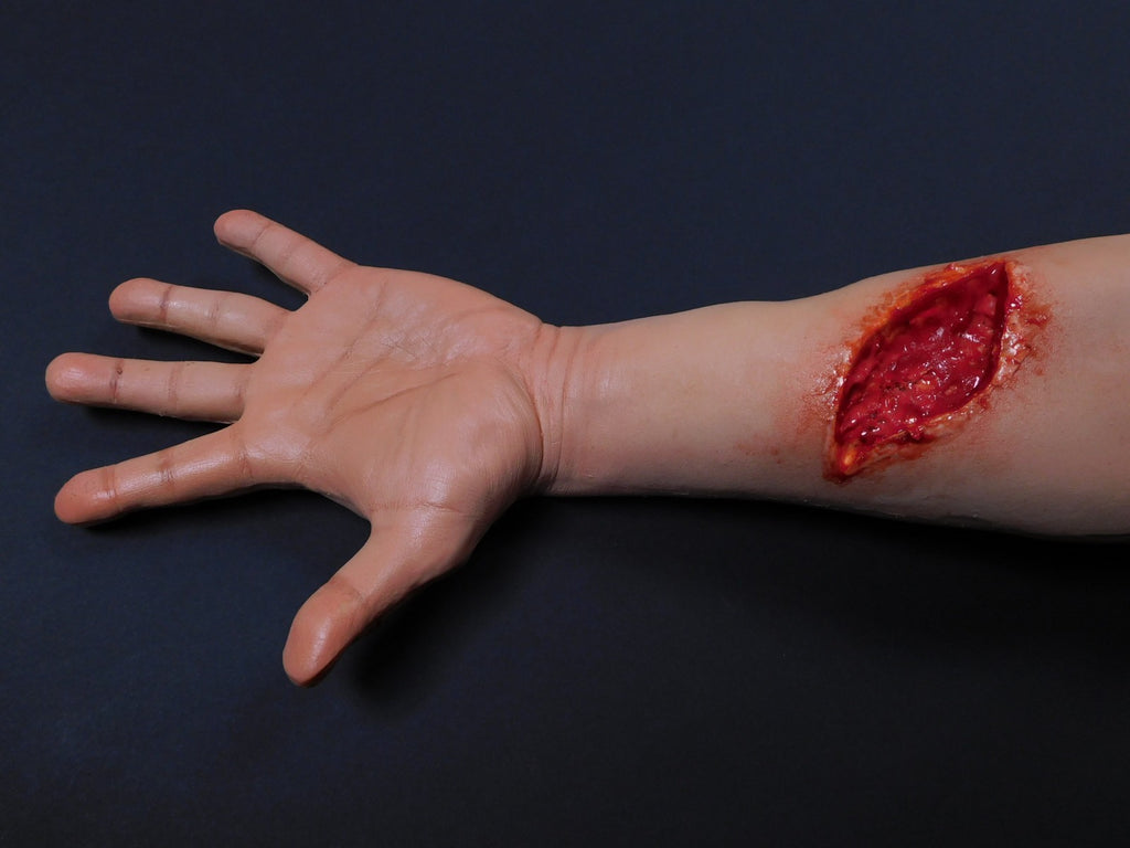 Dura Distal Laceration Kevin Hand