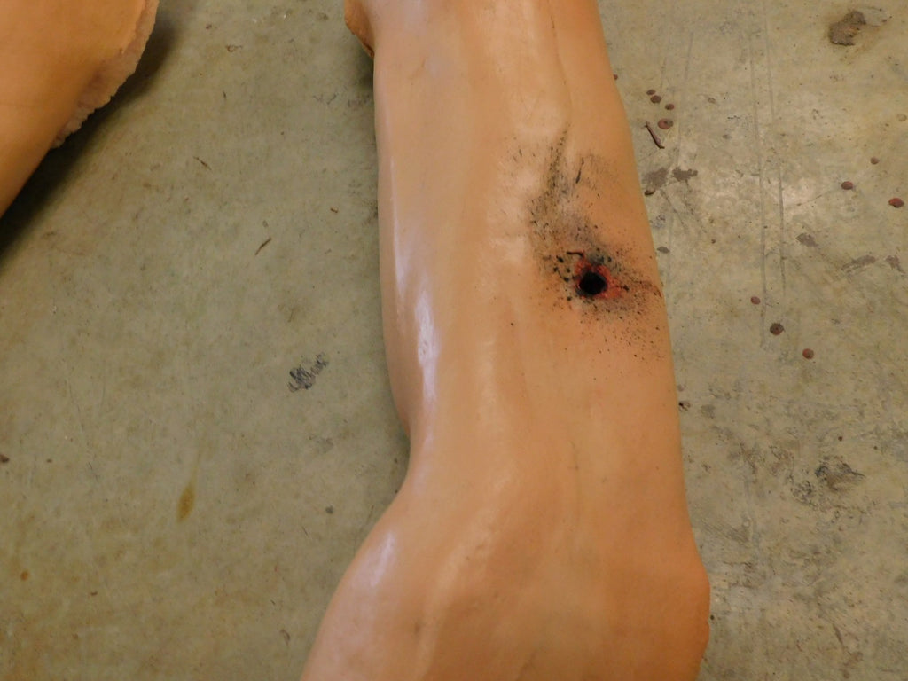 Dura Martin Arm with Gunshot Through and Through