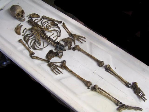 Disarticulated Skeleton with Cast Skull