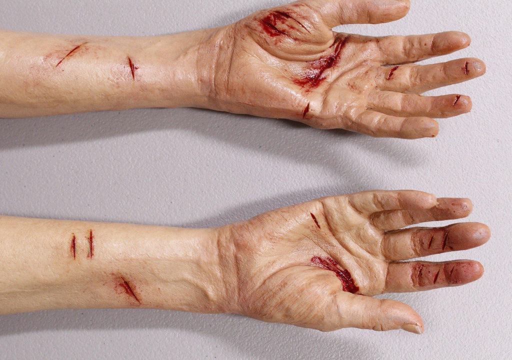 Dura Laceration Leslie Hands