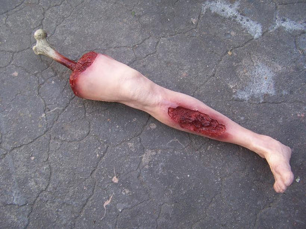 Male Wounded Leg with Exposed Bone