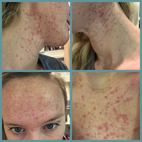Acne allergy breakout