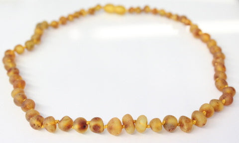 Amber Adult Necklace - (Raw) Honey **ON SALE**