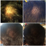 Hair loss before & after