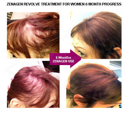 Women's hair loss before & after