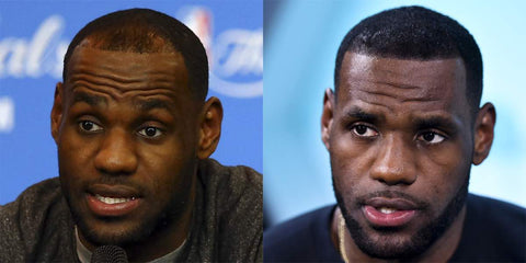Zenagen_Lebron_James_Balding_Photo_Shopify_Before_and_After_large.JPG?17042329526367975717