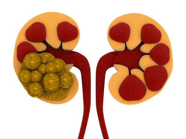 Kidney Stones Diet – Foods List, Benefits, And Lifestyle Changes
