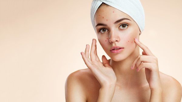 TYPES OF ACNE – QUICK TIPS TO HEAL THEM NATURALLY!