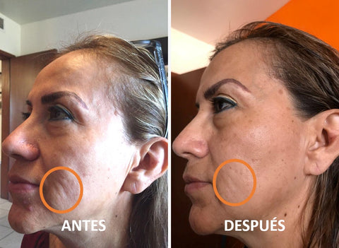 Resultados antes y despues vitamina c + HA