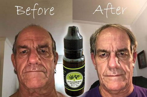 Image of Growth, Health & Repair Hair Oil with Jojoba and Hemp