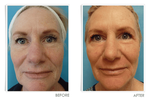 Laser Wrinkle Treatment - Before and After:  Front View