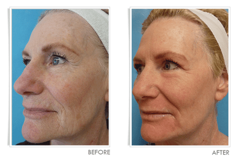 Laser Wrinkle Treatment - Before and After:  Left View