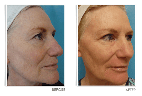 Laser Wrinkle Treatment - Before and After:  Right View