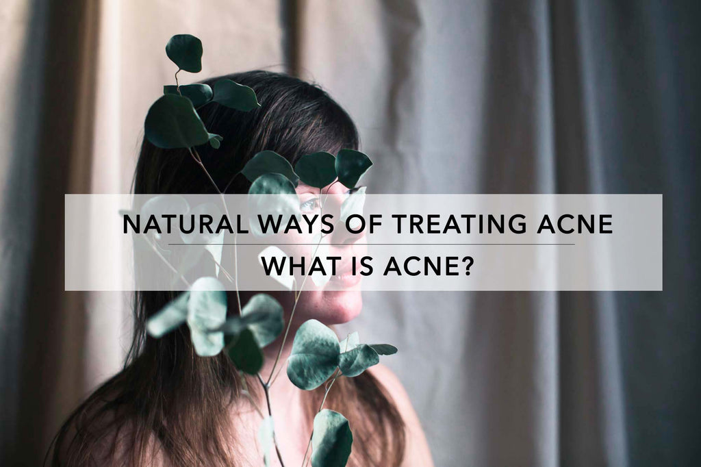 What causes acne? A natural acne solution.