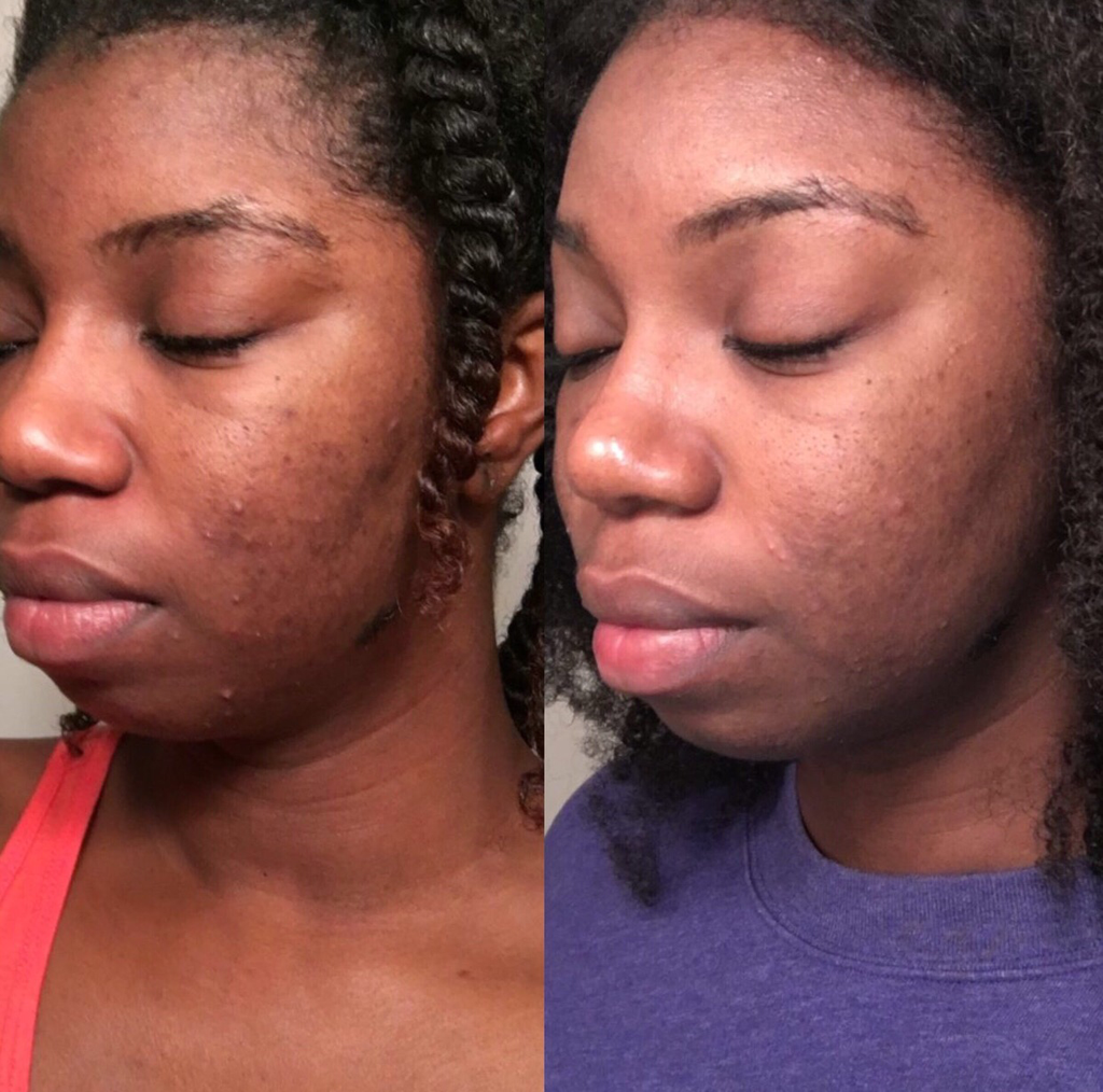 How Jasmine Cleared Her Severe Acne Scars