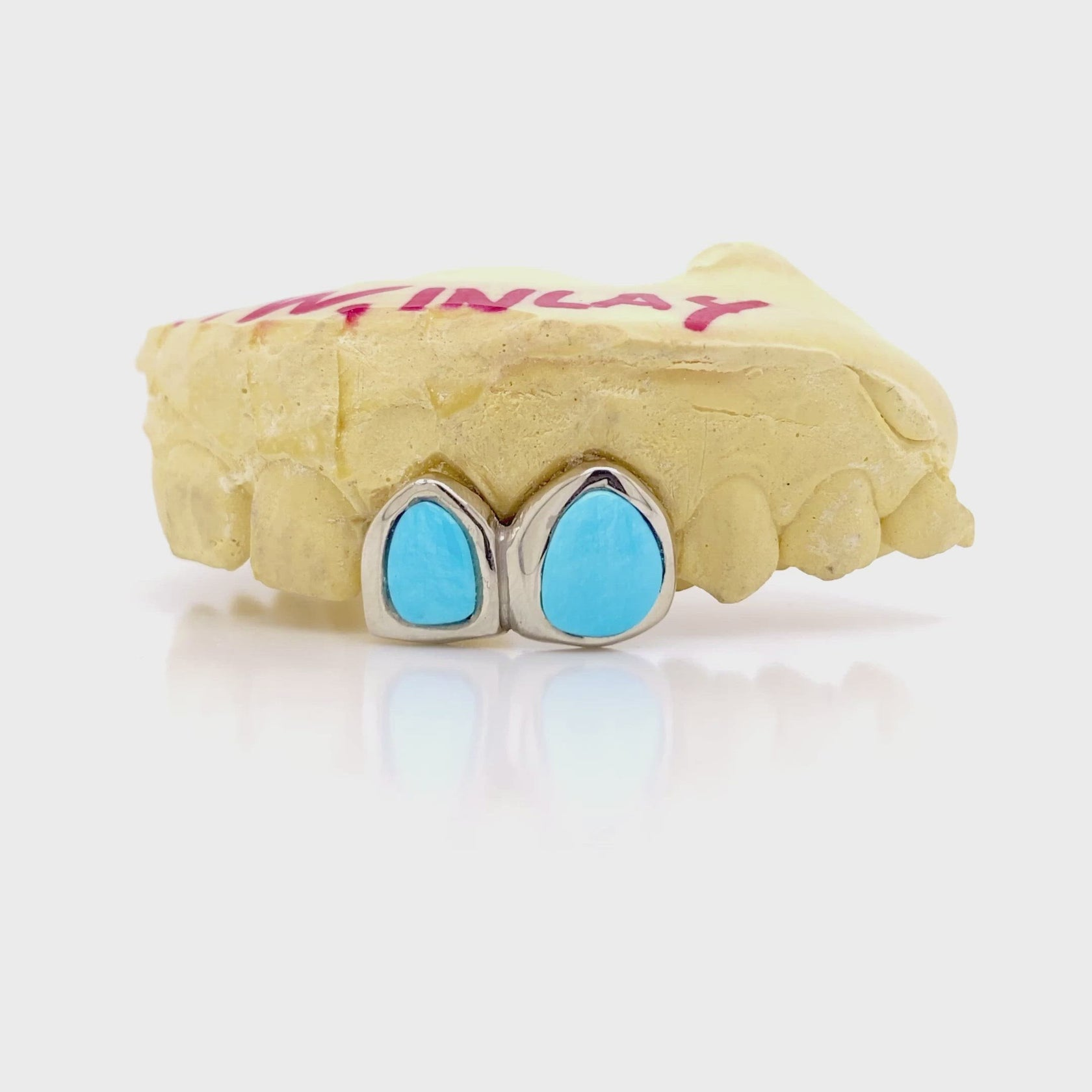 Turquoise Gold Grillz