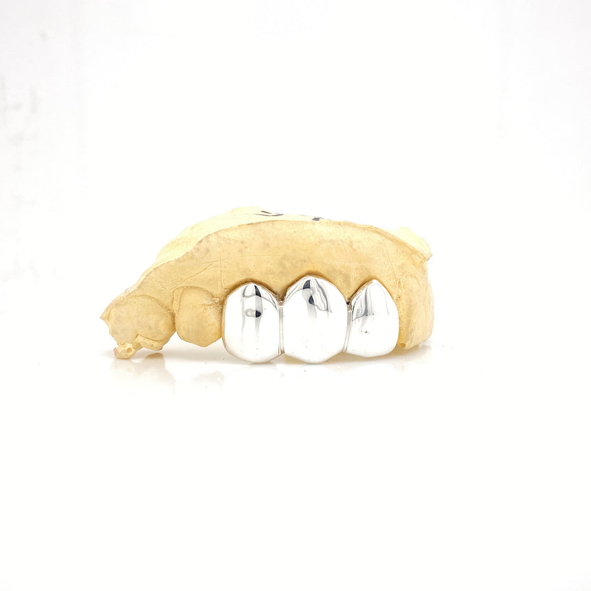White Gold Solid Cap Grillz