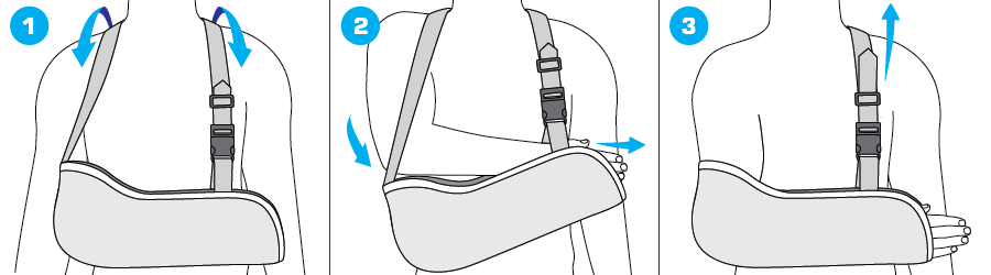How To Apply - 302 Cotton Arm Sling