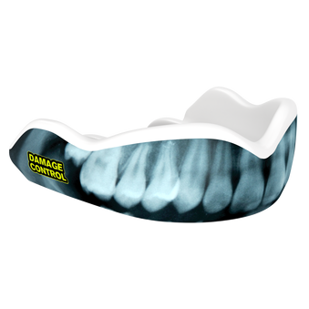 X-Ray Mouthguard (HI) - Damage Control Mouthguards