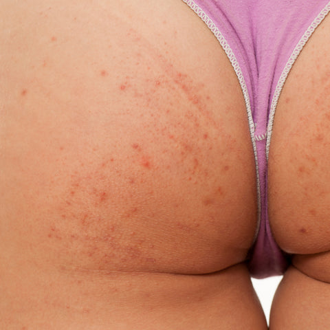 BUTT ACNE SWEAT RASH
