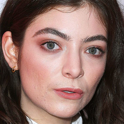LORDE ACNE