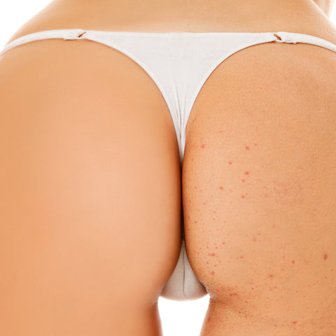 BUTT ACNE BEFORE AND AFTER TREATMENT