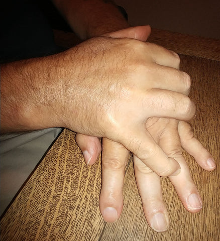 Hand Exercising - Rehabilitation: Recovering from a Stroke, stretch out  fingers.