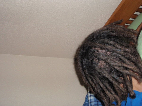 1 Year 1 Month Dreadlocks