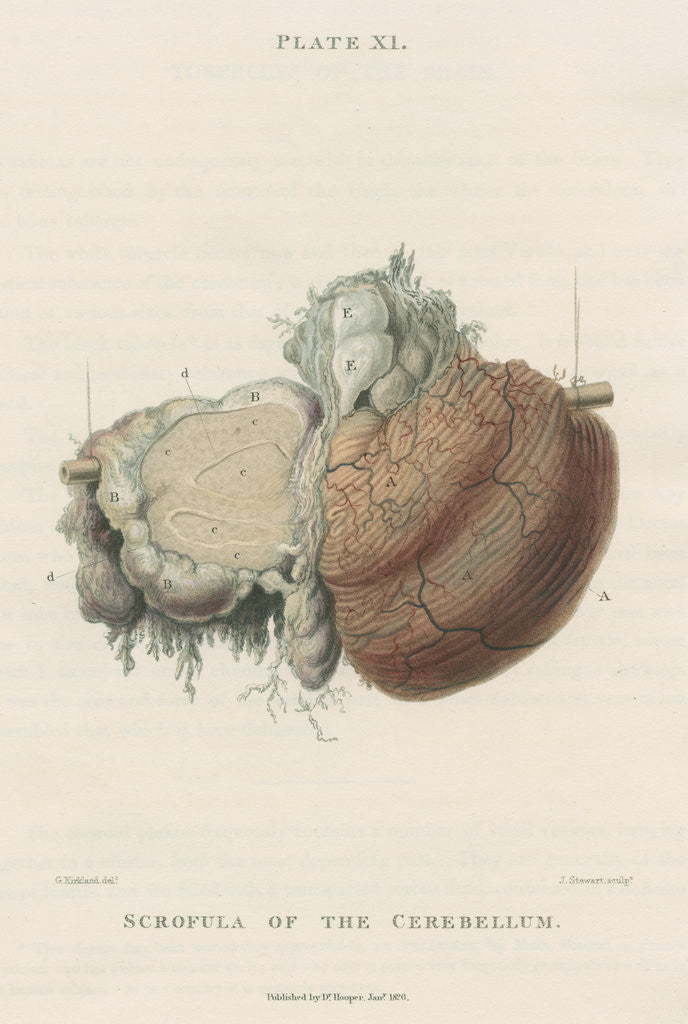 Detail of 'Scrofula of the cerebellum' by J Stewart senior