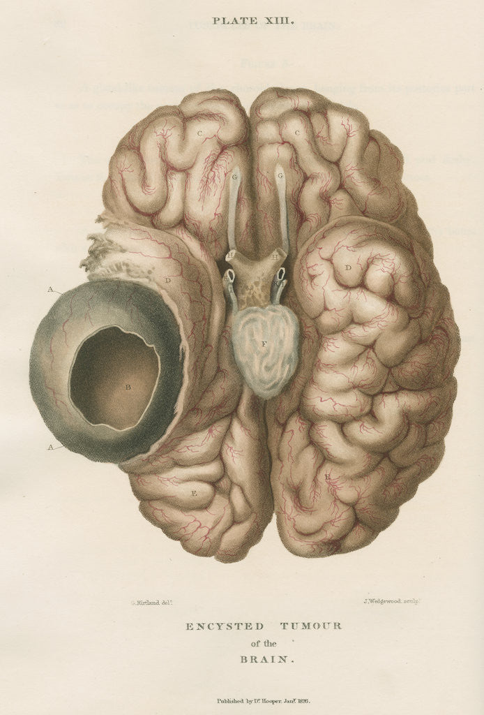 Detail of 'Encysted tumour of the brain' by J Wedgewood