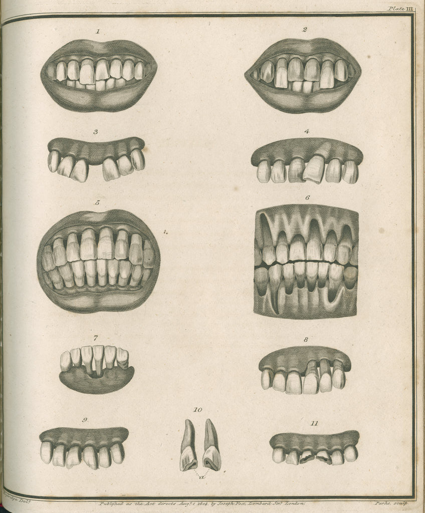 Detail of Irregularities of the teeth by Parks