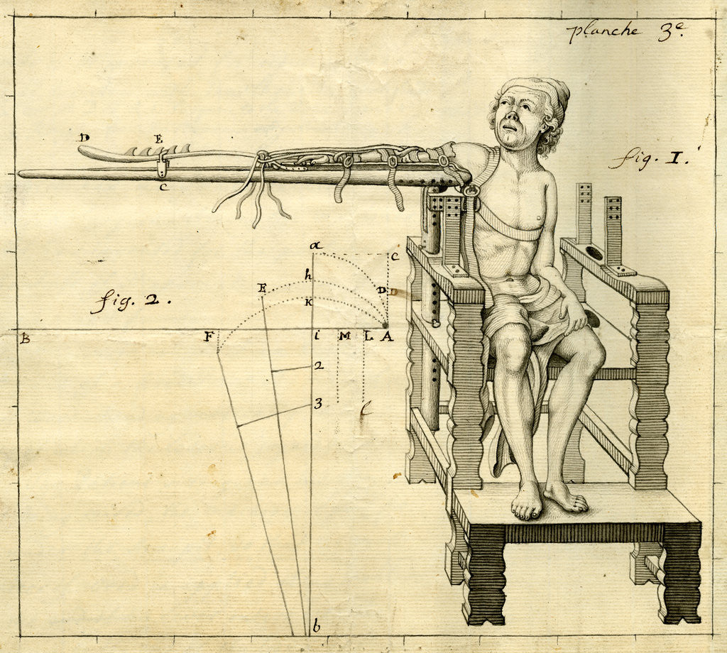 Detail of 'Ambe of Hippocrates': contraption for repairing dislocated shoulders by Claude-Nicholas Le Cat