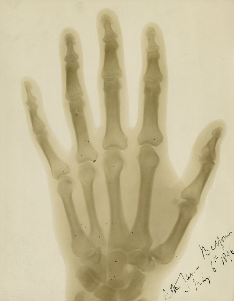 Detail of X-ray photograph of the hand of Arthur James Balfour by Alan Archibald Campbell Swinton