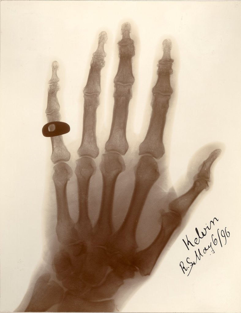 Detail of X-ray photograph of the hand of William Thomson by Alan Archibald Campbell Swinton