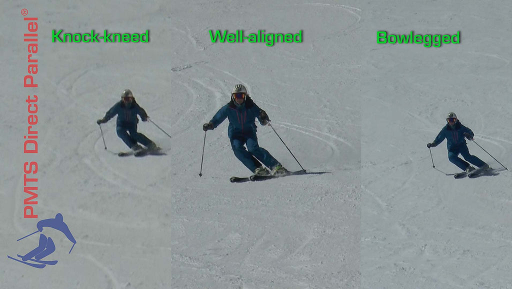 Alignment ~ On-snow Assessment eVideo