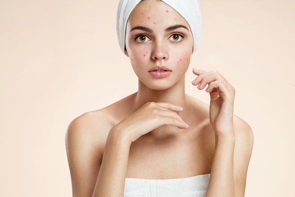 Acne: What is Making You Break Out & How to Avoid It