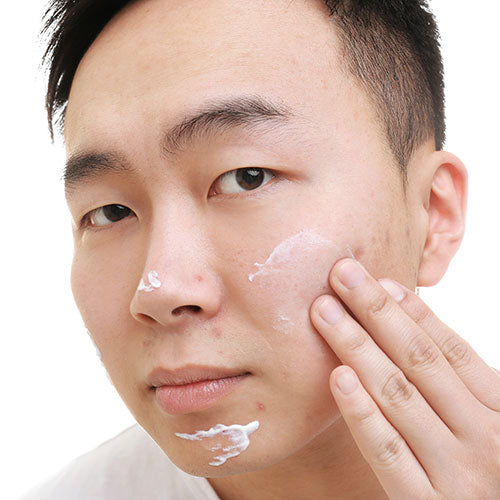 Acne Spot Treatment Cream for Sensitive Skin
