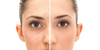 Acne Scar vs. Dark Spot