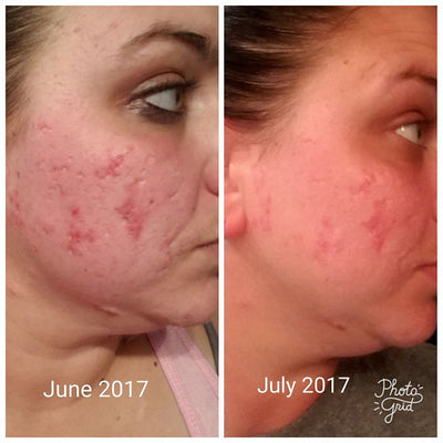 acne scar reducing serum navan skin care